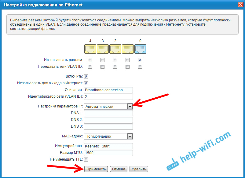 Настройка автоматического получения IP на ZyXEL